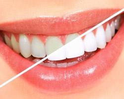 Nipomo-Family-Dentistry-Whitening-Teeth-Nipomo-white-